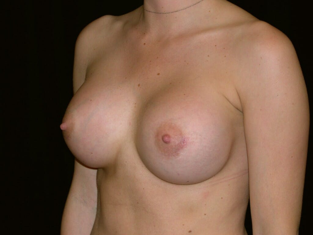 Breast Augmentation Gallery - Patient 39245426 - Image 4