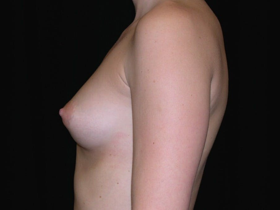 Breast Augmentation Gallery - Patient 39245426 - Image 5