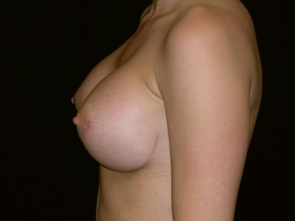Breast Augmentation Gallery - Patient 39245426 - Image 6