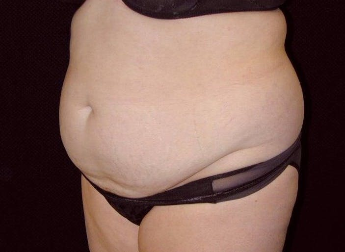 Tummy Tuck Gallery - Patient 39245427 - Image 1