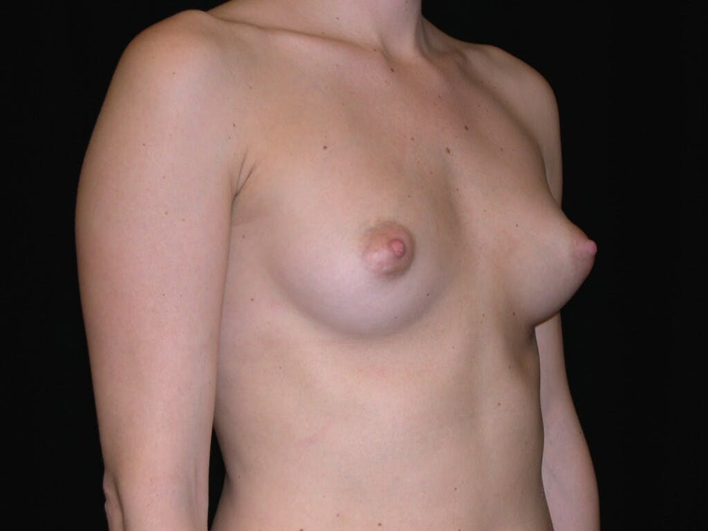 Breast Augmentation Gallery - Patient 39245426 - Image 7