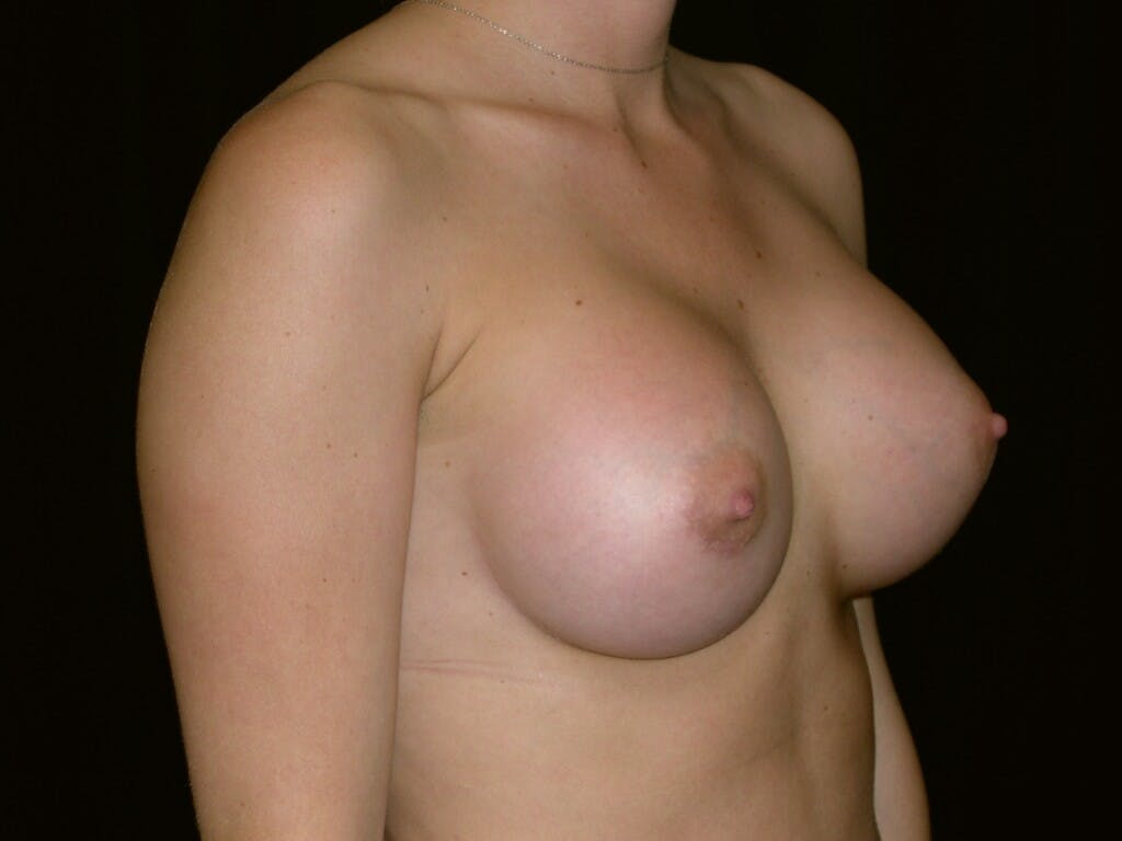 Breast Augmentation Gallery - Patient 39245426 - Image 8