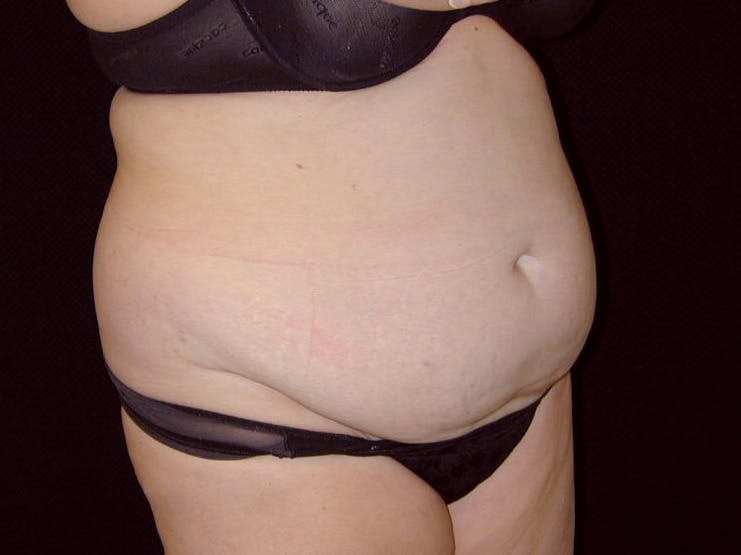 Tummy Tuck Gallery - Patient 39245427 - Image 3