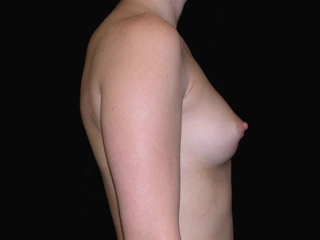 Breast Augmentation Gallery - Patient 39245426 - Image 9