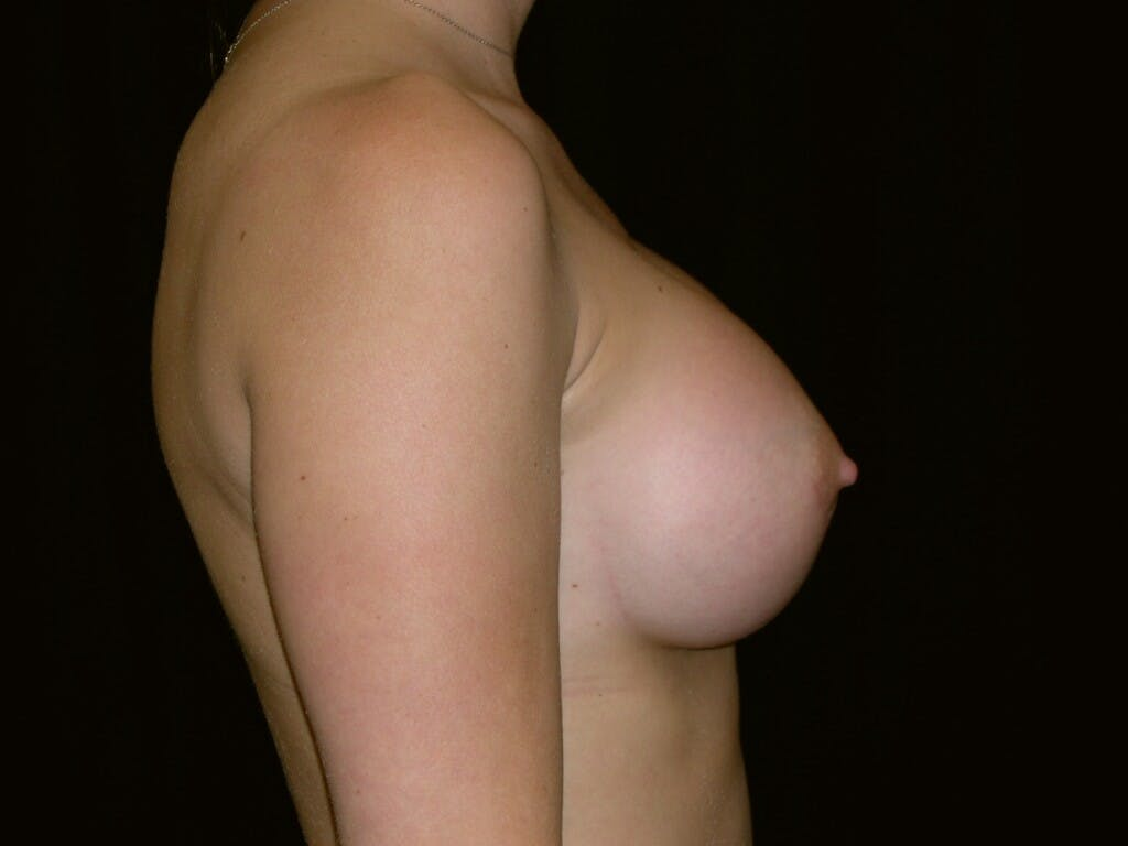Breast Augmentation Gallery - Patient 39245426 - Image 10