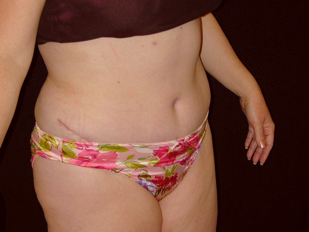 Tummy Tuck Gallery - Patient 39245427 - Image 4