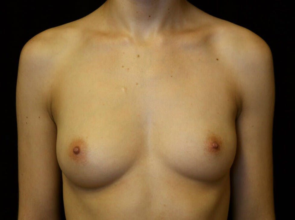 Breast Augmentation Gallery - Patient 39245428 - Image 1
