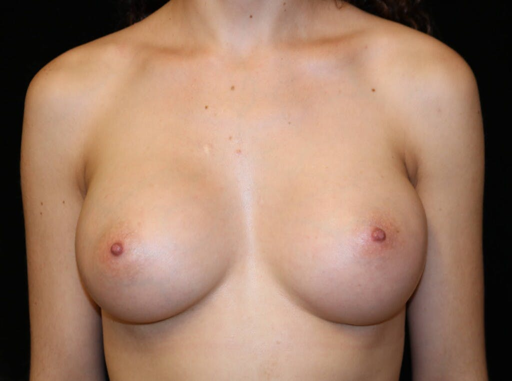 Breast Augmentation Gallery - Patient 39245428 - Image 2