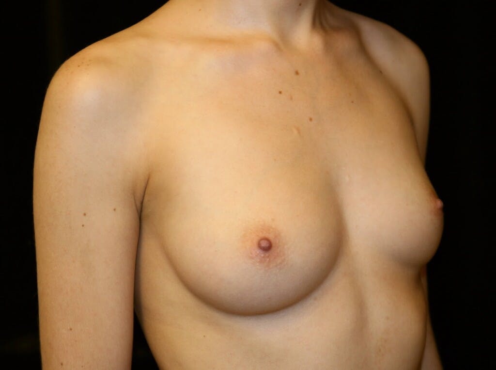 Breast Augmentation Gallery - Patient 39245428 - Image 3