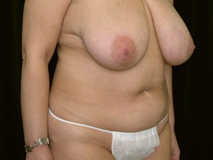 Tummy Tuck Gallery - Patient 39245429 - Image 1