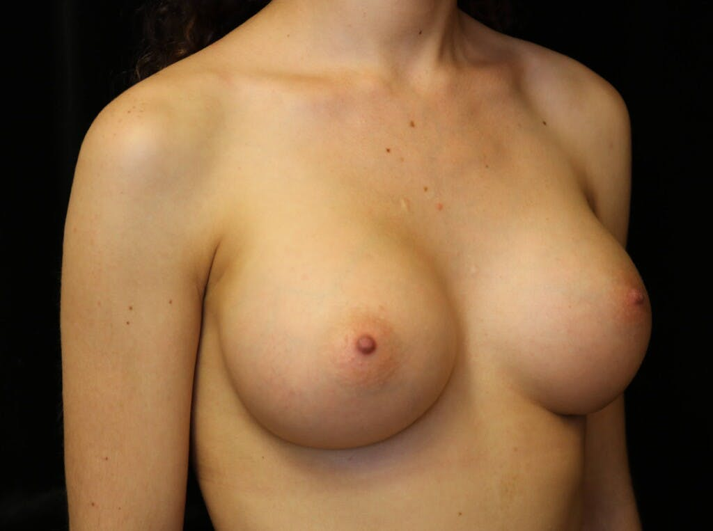 Breast Augmentation Gallery - Patient 39245428 - Image 4