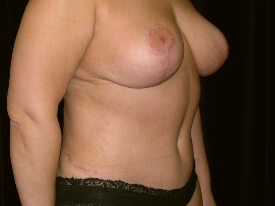 Tummy Tuck Gallery - Patient 39245429 - Image 2