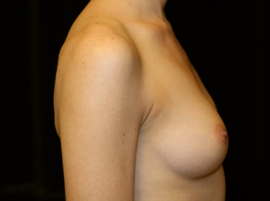 Breast Augmentation Gallery - Patient 39245428 - Image 5
