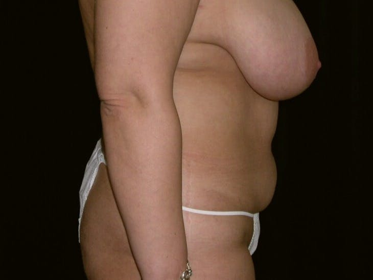 Tummy Tuck Gallery - Patient 39245429 - Image 3