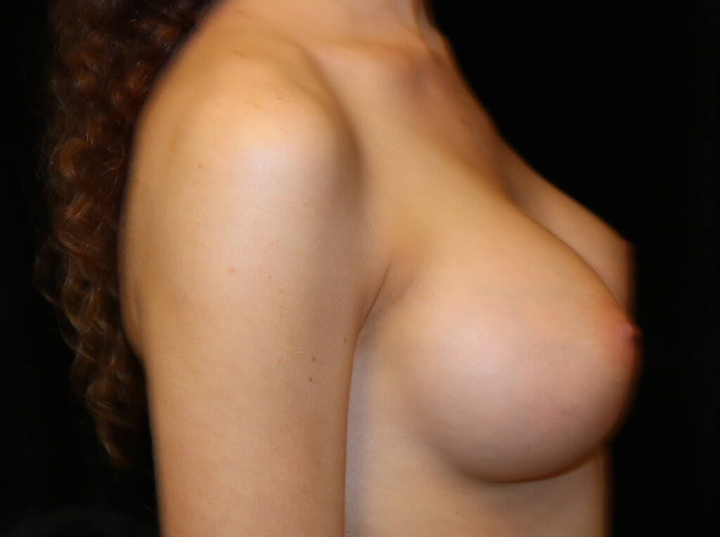 Breast Augmentation Gallery - Patient 39245428 - Image 6