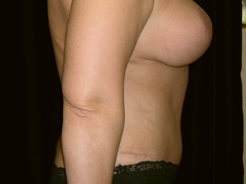 Tummy Tuck Gallery - Patient 39245429 - Image 4