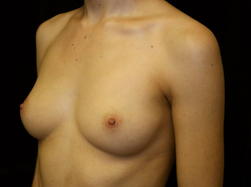 Breast Augmentation Gallery - Patient 39245428 - Image 7