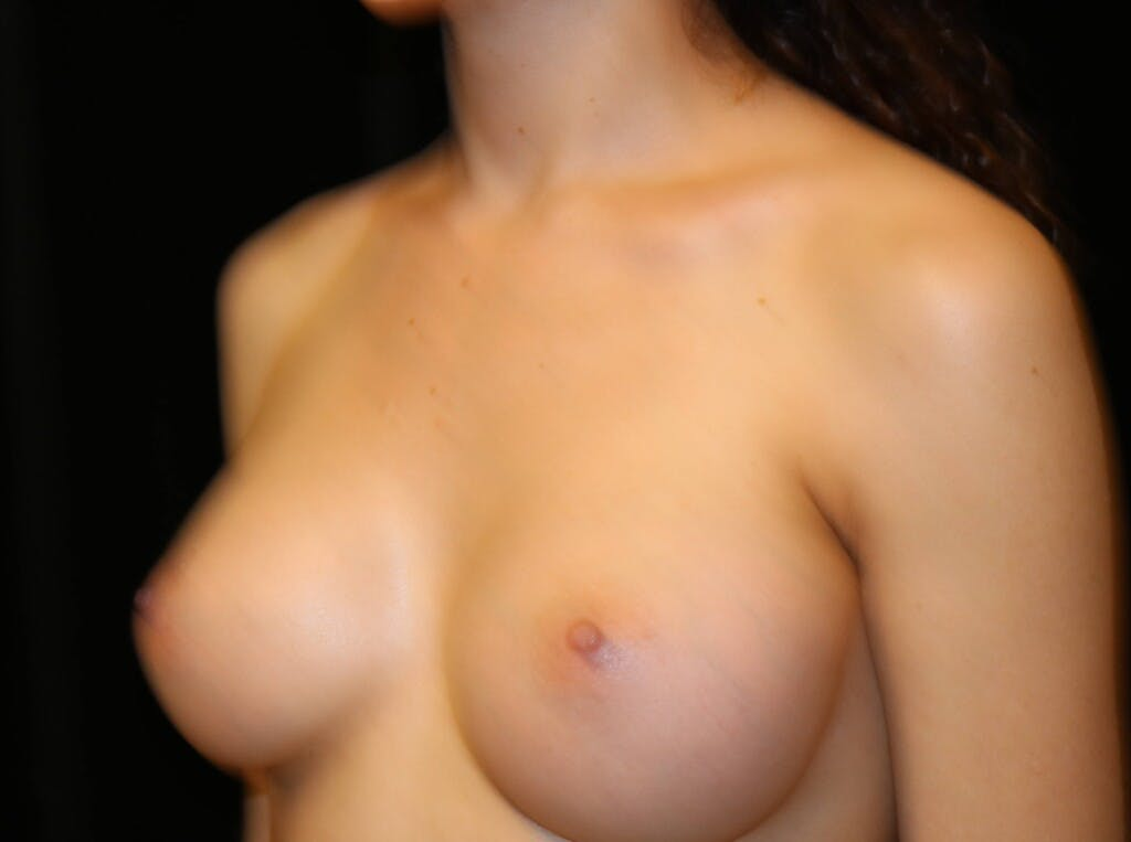 Breast Augmentation Gallery - Patient 39245428 - Image 8