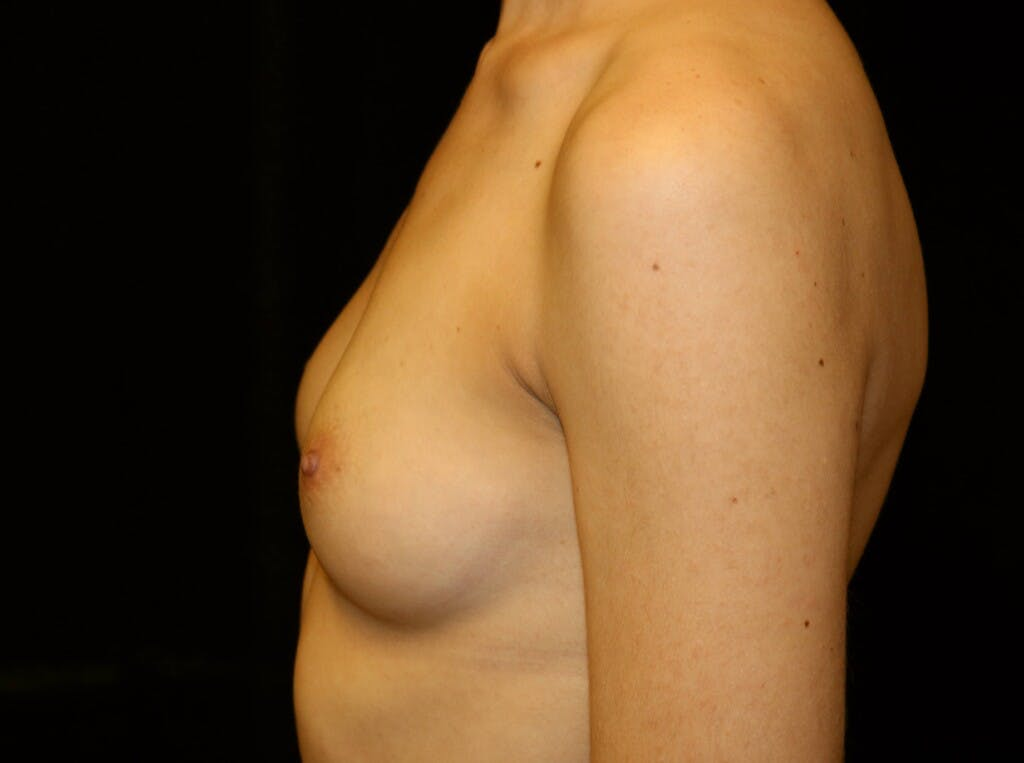 Breast Augmentation Gallery - Patient 39245428 - Image 9