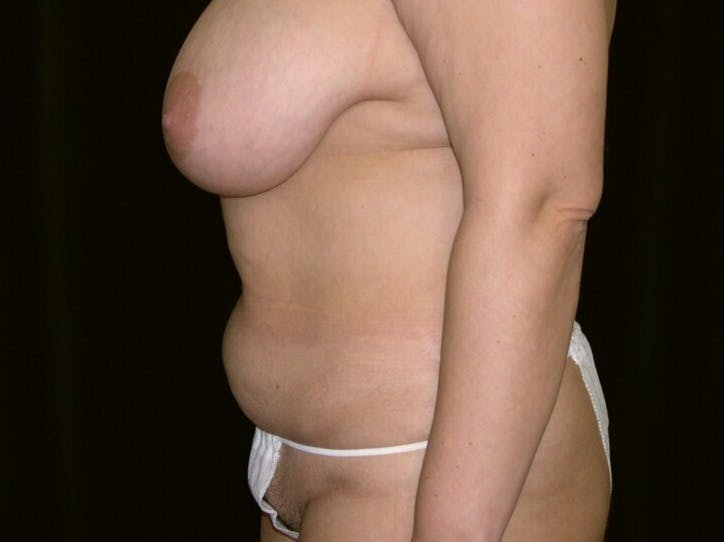 Tummy Tuck Gallery - Patient 39245429 - Image 7