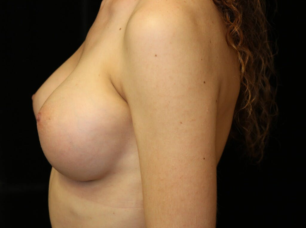 Breast Augmentation Gallery - Patient 39245428 - Image 10