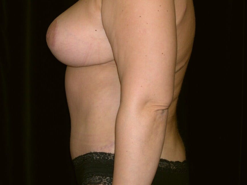 Tummy Tuck Gallery - Patient 39245429 - Image 8