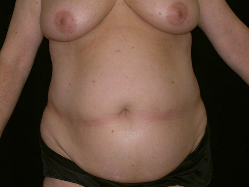 Tummy Tuck Gallery - Patient 39245430 - Image 1