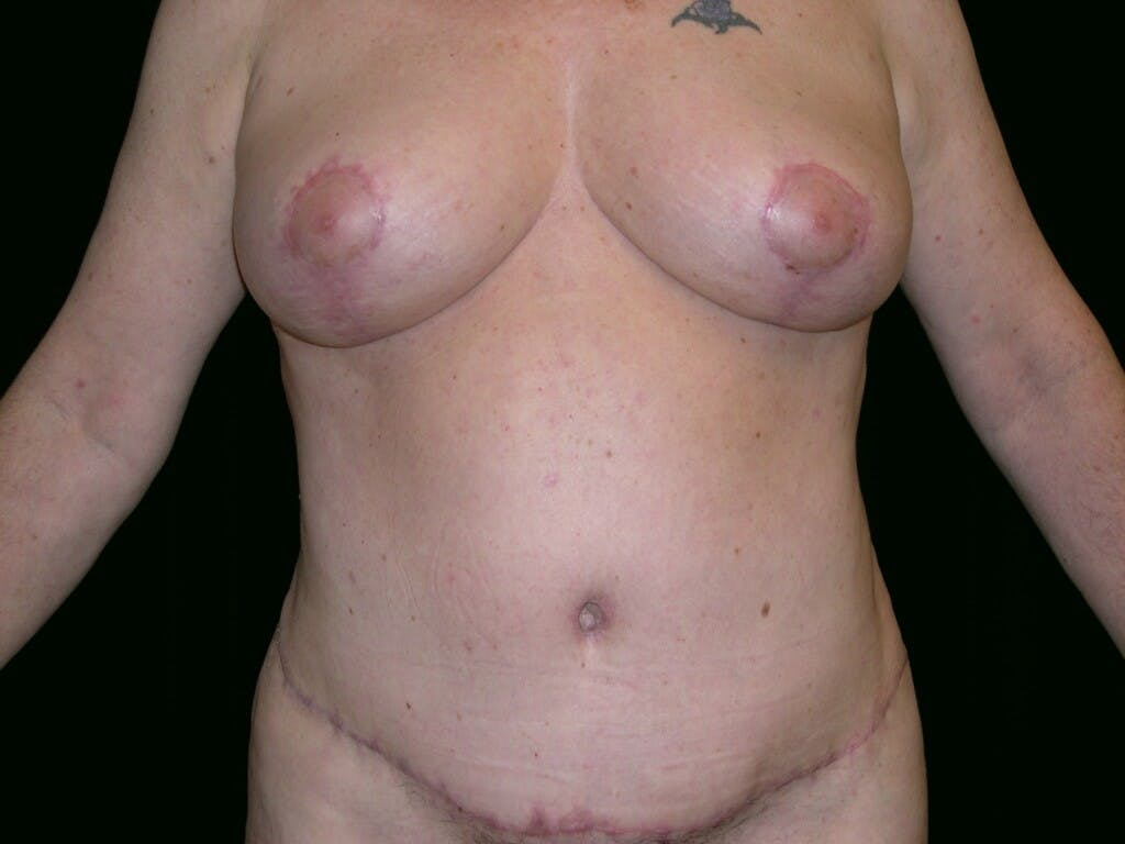 Tummy Tuck Gallery - Patient 39245430 - Image 2