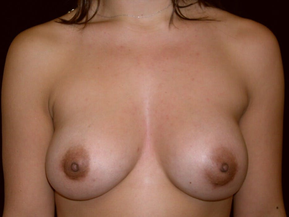 Breast Augmentation Gallery - Patient 39245431 - Image 2