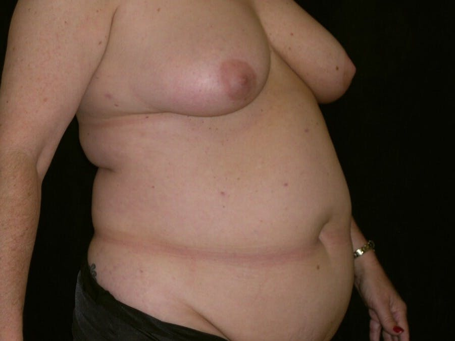 Tummy Tuck Gallery - Patient 39245430 - Image 3