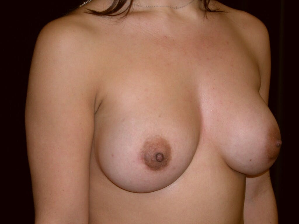 Breast Augmentation Gallery - Patient 39245431 - Image 4