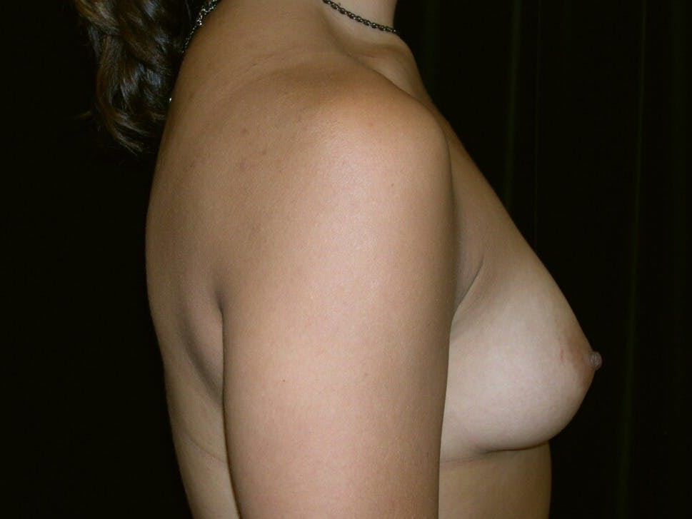 Breast Augmentation Gallery - Patient 39245431 - Image 5