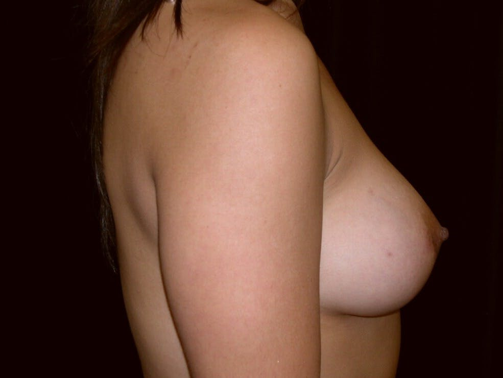 Breast Augmentation Gallery - Patient 39245431 - Image 6