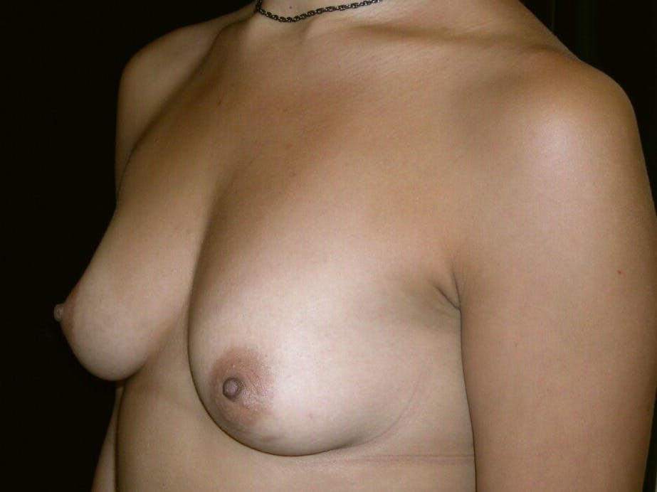 Breast Augmentation Gallery - Patient 39245431 - Image 7
