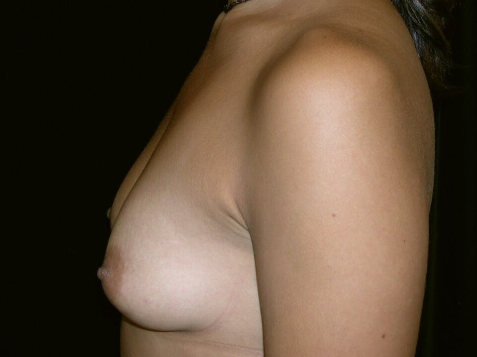 Breast Augmentation Gallery - Patient 39245431 - Image 9