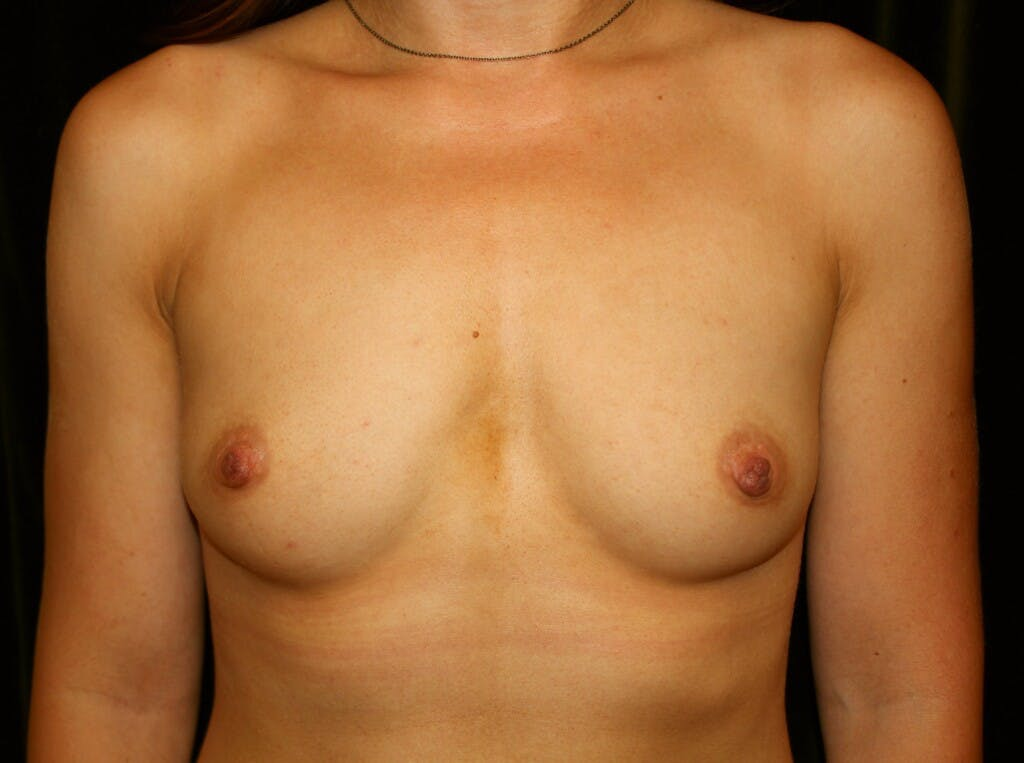 Breast Augmentation Gallery - Patient 39245435 - Image 1