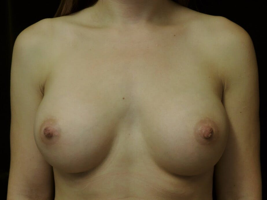Breast Augmentation Gallery - Patient 39245435 - Image 2