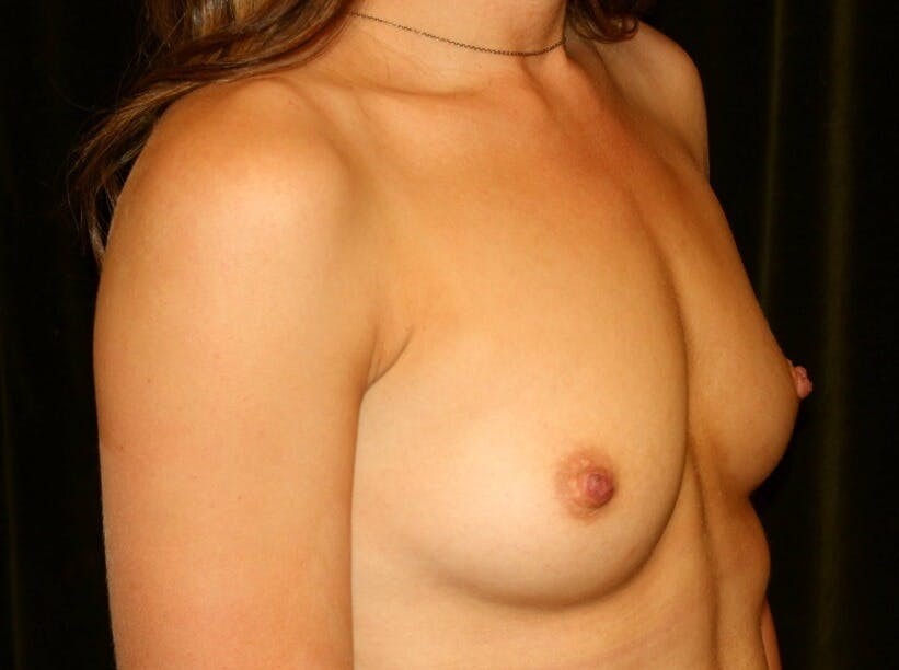 Breast Augmentation Gallery - Patient 39245435 - Image 3