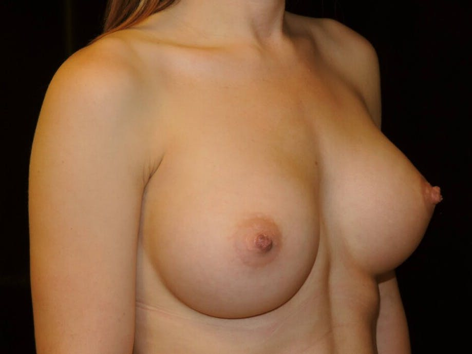 Breast Augmentation Gallery - Patient 39245435 - Image 4