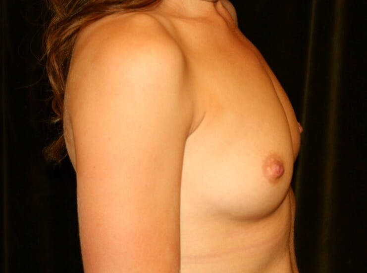Breast Augmentation Gallery - Patient 39245435 - Image 5