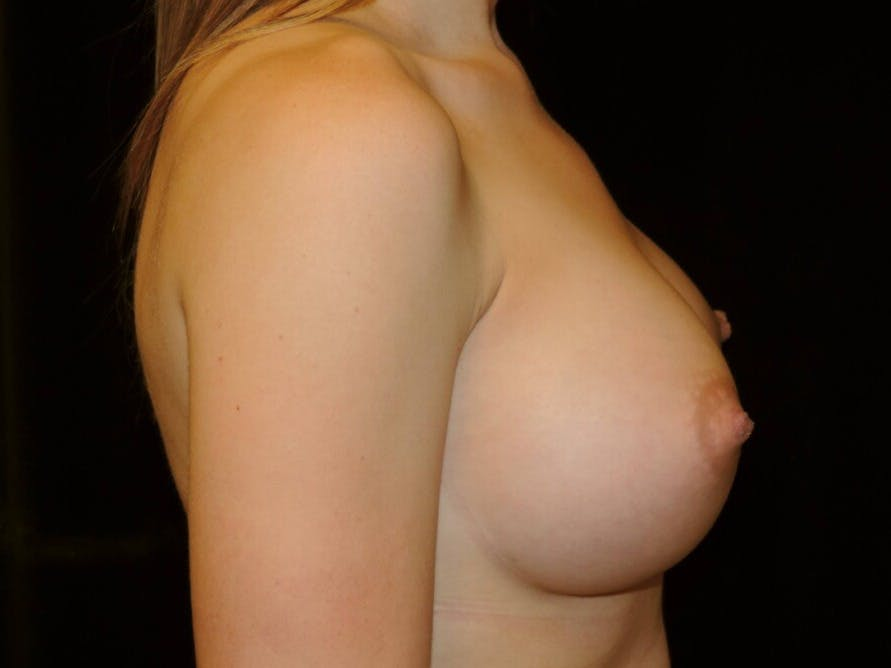 Breast Augmentation Gallery - Patient 39245435 - Image 6