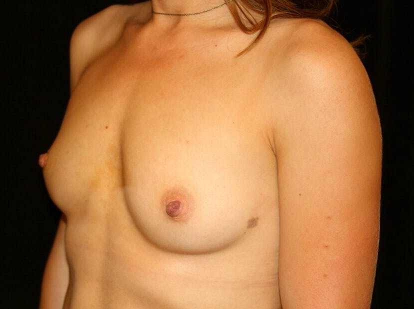 Breast Augmentation Gallery - Patient 39245435 - Image 7