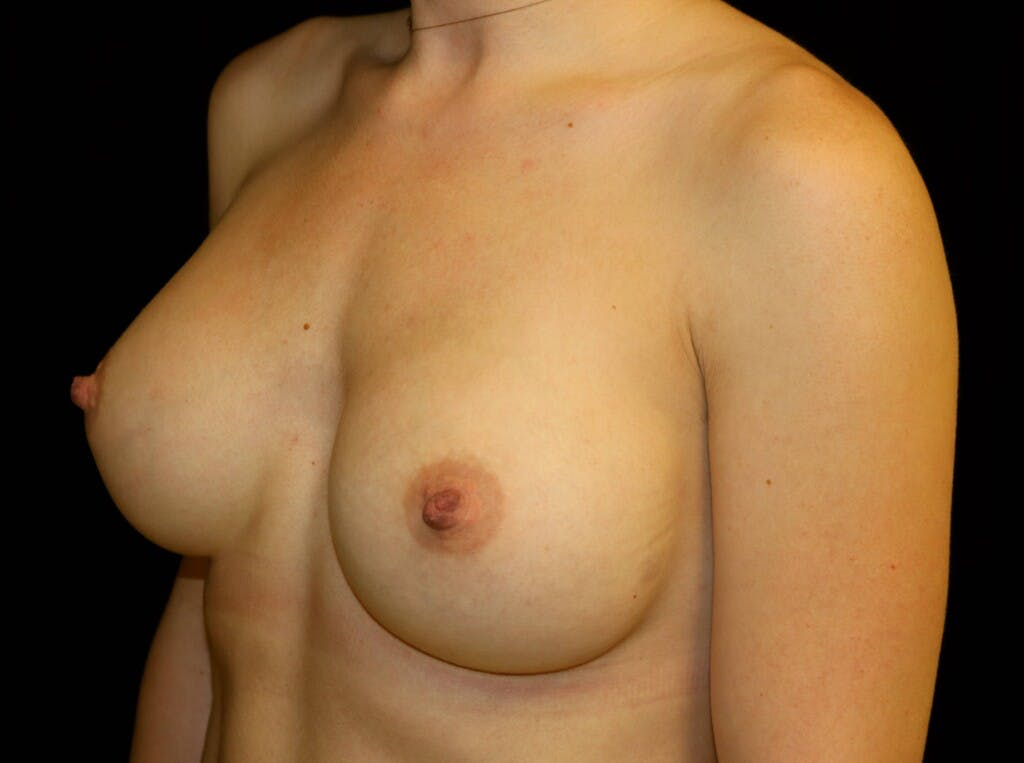 Breast Augmentation Gallery - Patient 39245435 - Image 8