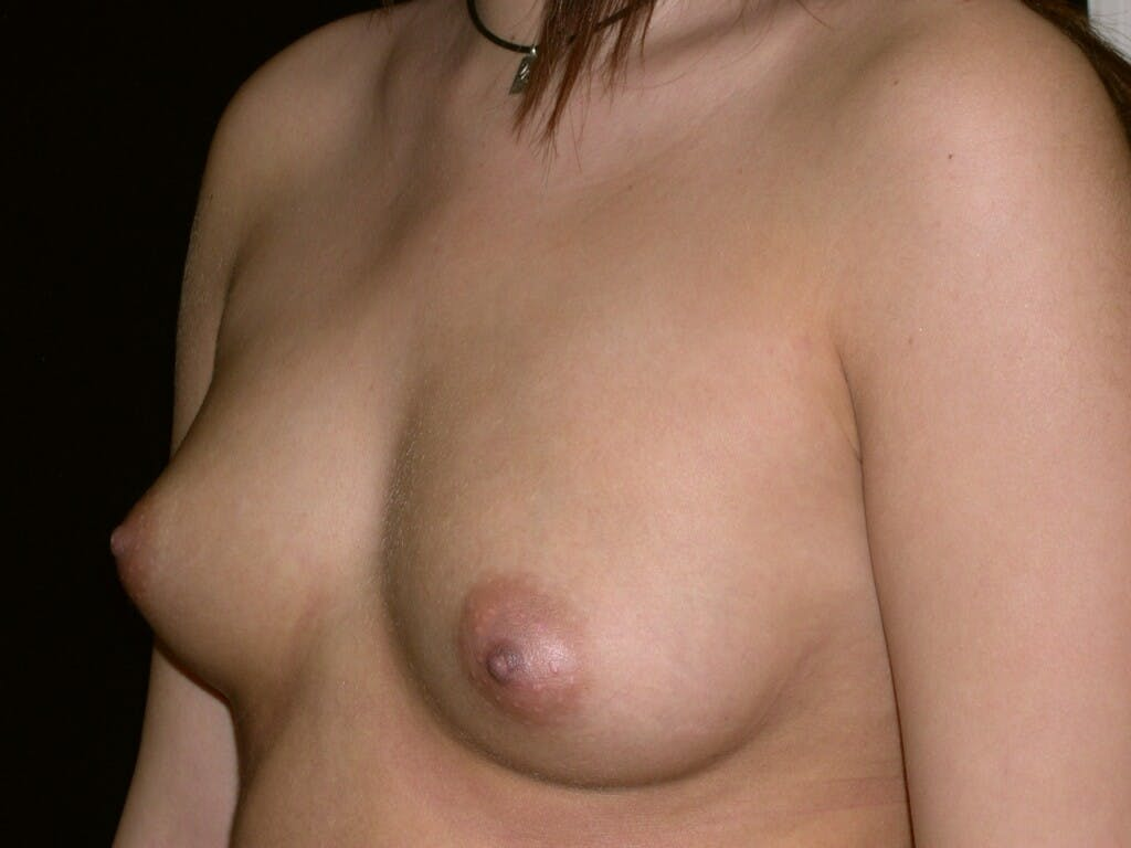 Breast Augmentation Gallery - Patient 39245437 - Image 1
