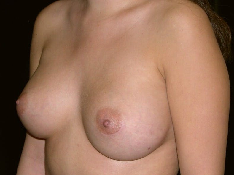 Breast Augmentation Gallery - Patient 39245437 - Image 2