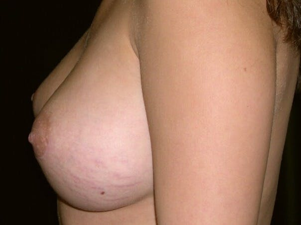 Breast Augmentation Gallery - Patient 39245437 - Image 4