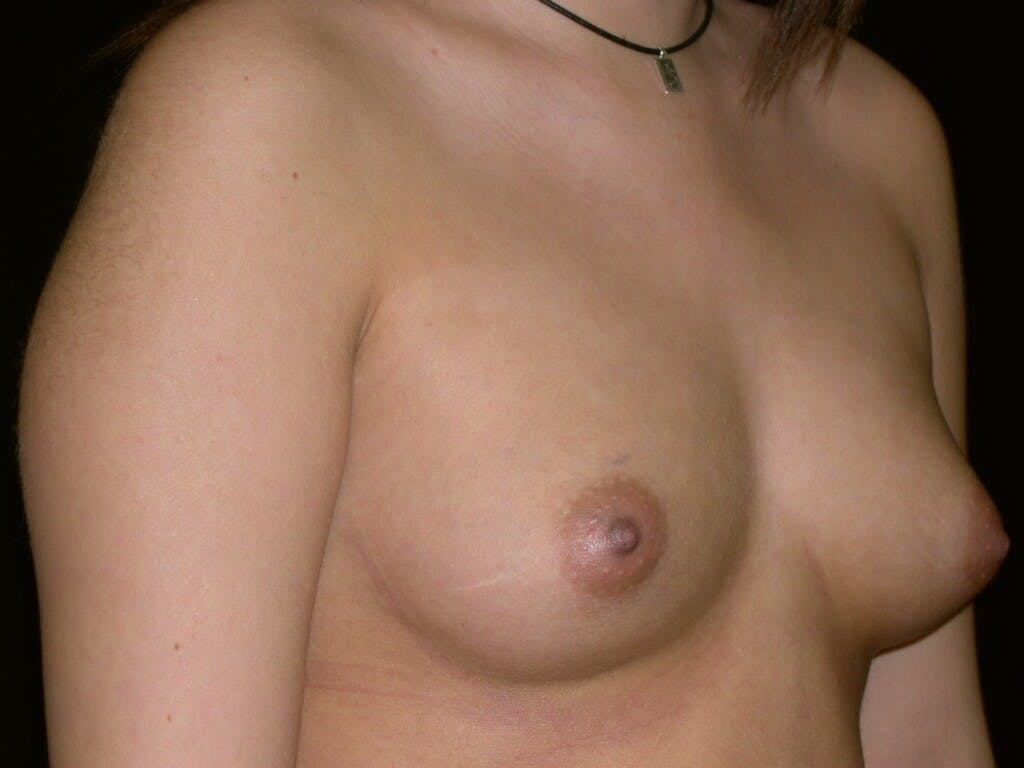 Breast Augmentation Gallery - Patient 39245437 - Image 5