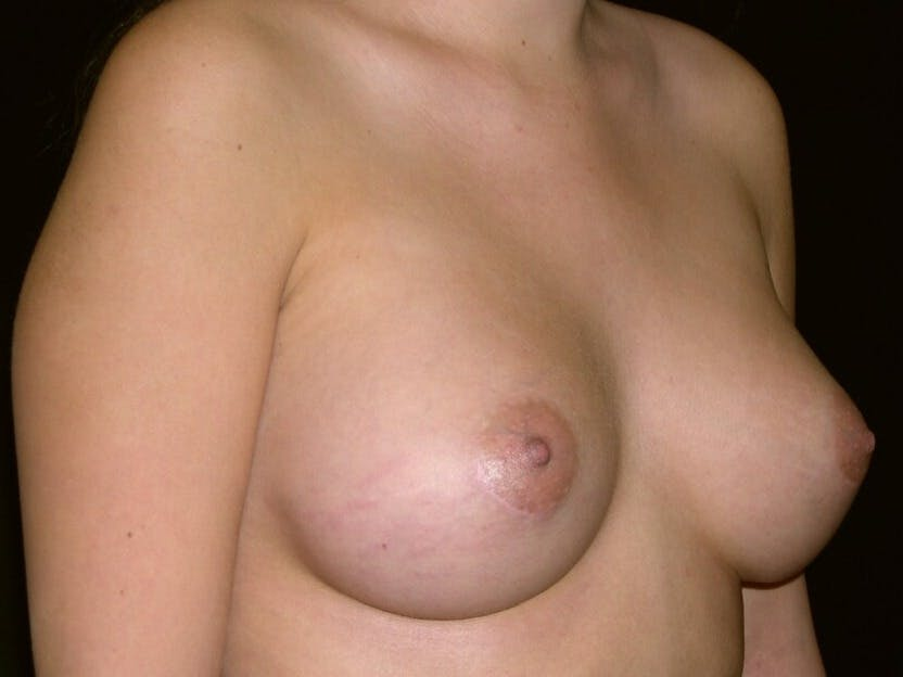Breast Augmentation Gallery - Patient 39245437 - Image 6