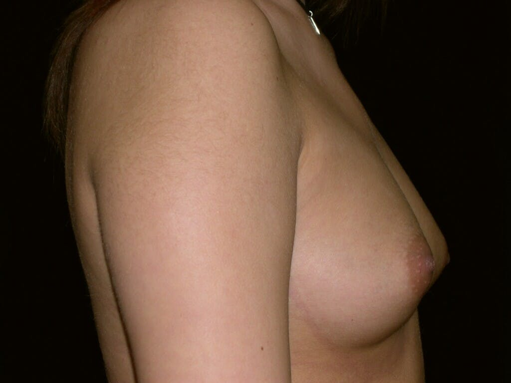 Breast Augmentation Gallery - Patient 39245437 - Image 7