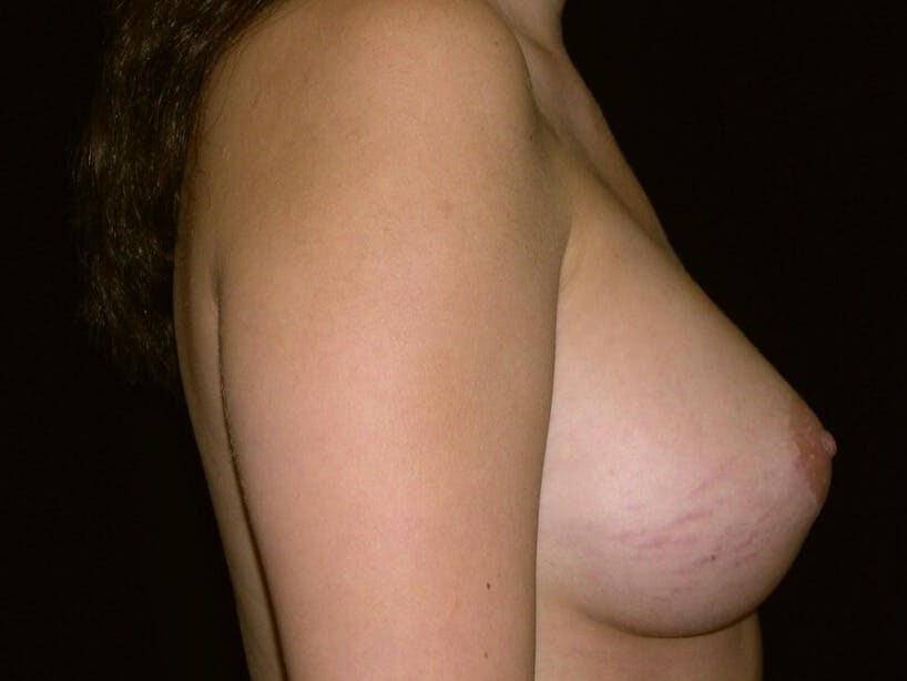 Breast Augmentation Gallery - Patient 39245437 - Image 8